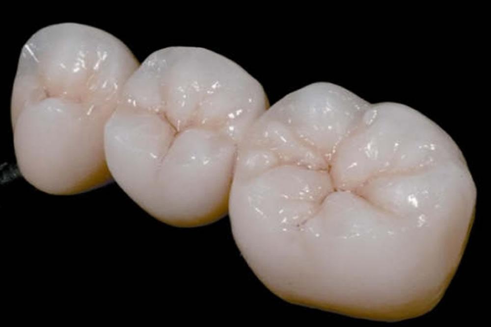 歯の色合い