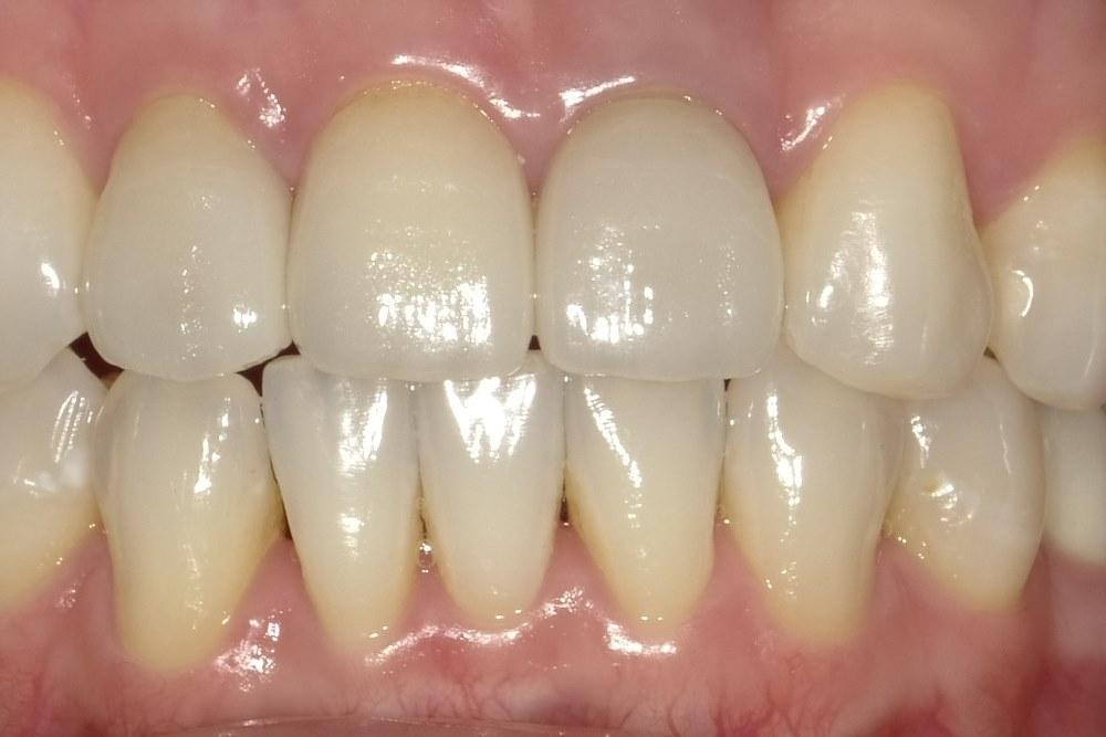 前歯部オールセラミッククラウン
