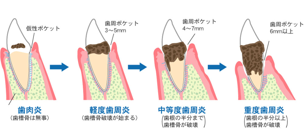 一般的な歯周病治療